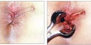 Fistül Ameliyatı